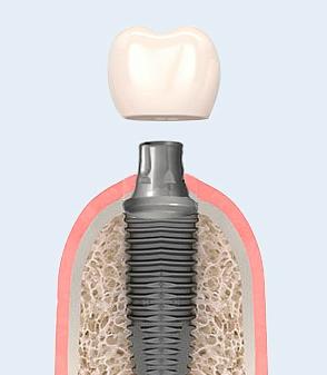 Имплантация и протезирование зубов в клинике в городе Владивостоке 3 шаг
