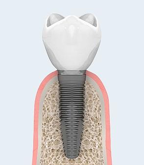 Имплантация зуба и установка постоянной коронки в городе Владивостоке